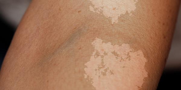 قارچ پوستی تینه آ ورسی کالر