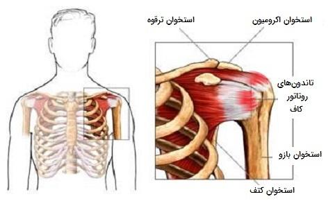 التهاب تاندون شانه