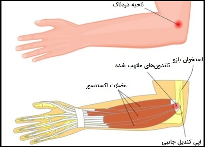 التهاب تاندون آرنج