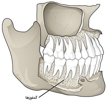 مفاصل دندان