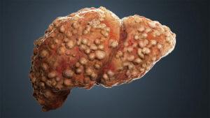 سیروز کبدی چیست ، چه علائمی دارد و چگونه درمان می شود؟