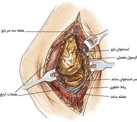 جراحی سینووکتومی