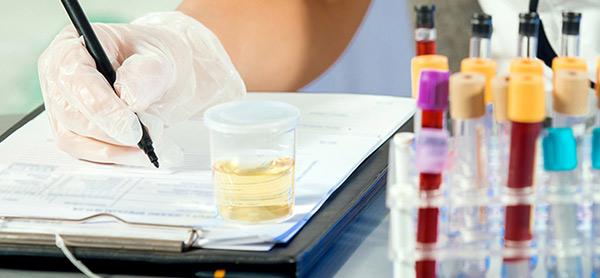 آزمایش الکتروفورز پروتئین ادرار