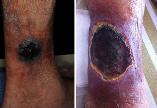 عفونت قارچ سیاه