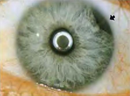 آسیب چشم ناشی از تروما