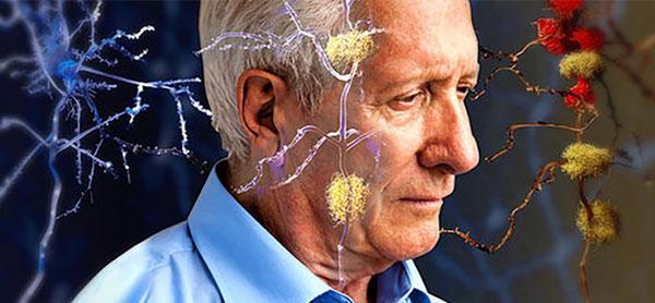 مراقبت از آلزایمر