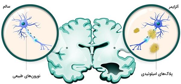 نورون و آلزایمر