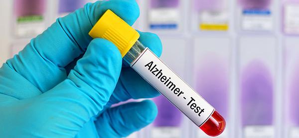 آزمایش خون آلزایمر