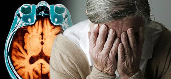 مراحل آلزایمر