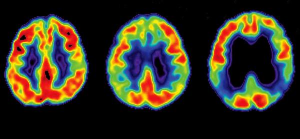 تغییرات مغزی آلزایمر