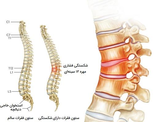 شکستگی استخوان مهره سینهای