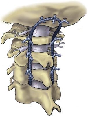 اختلال جمجمه - گردن